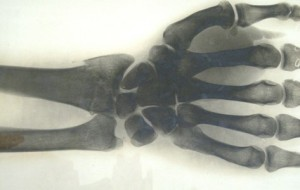 wrist fracture X-ray; Hickman archive MHS